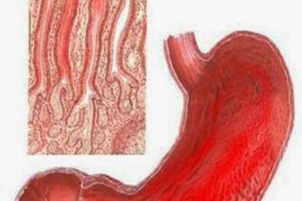 La-Gastritis-Aguda